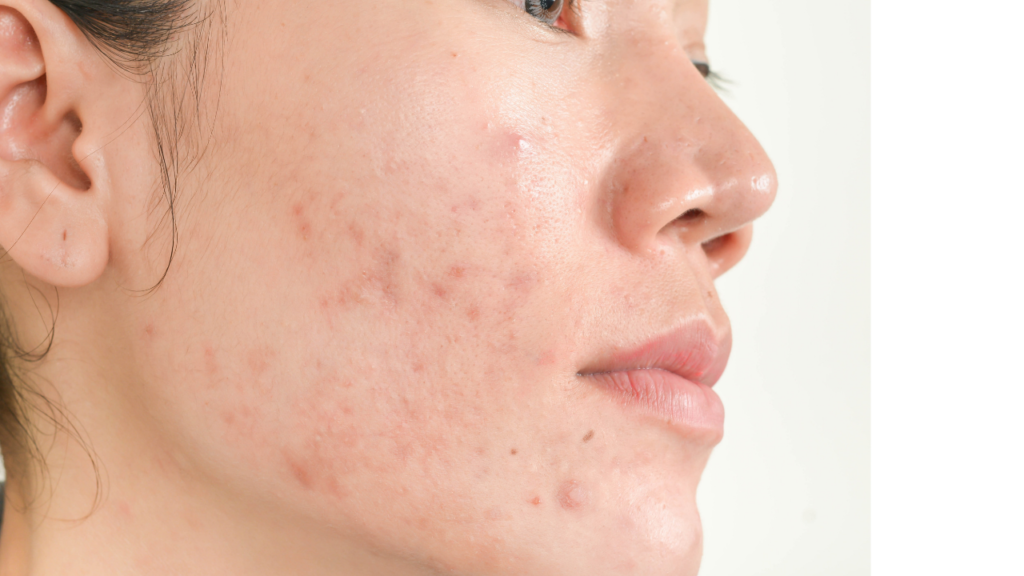 zsíros bőr ápolása